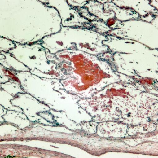 Bild på Histologi - Andningssystemet