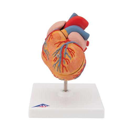 Bild på Hjärta vänster ventrikulär hypertrofi G04 1000261