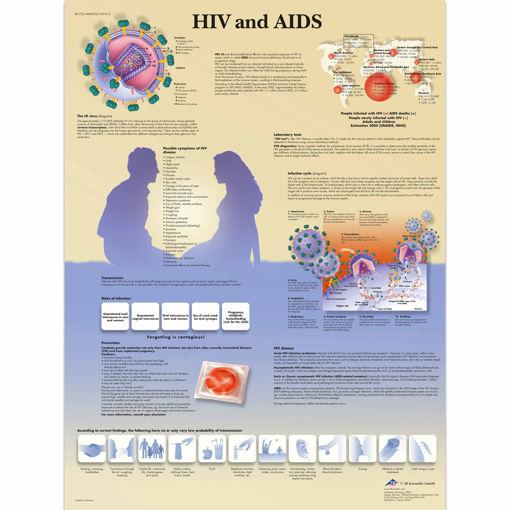 Bild på Hiv och Aids VR1725 1001610