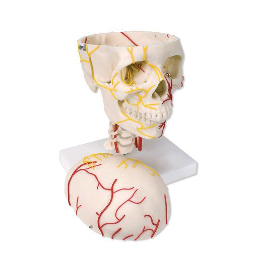 Bild på Kranium neurovaskulär W19018 1005108