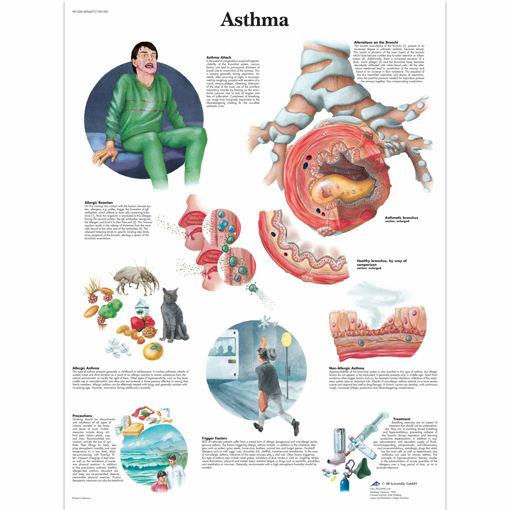Bild på Astma VR1328 1001520
