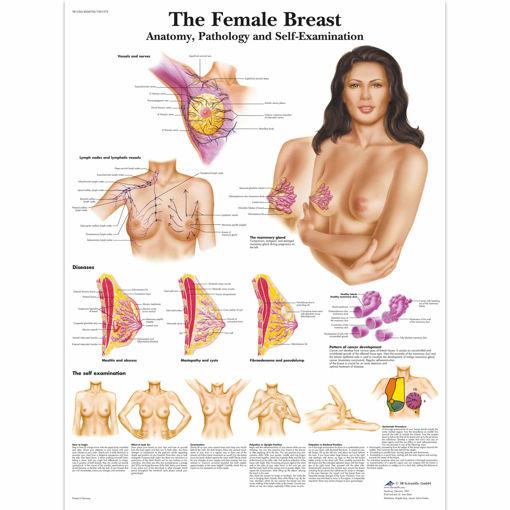 Bild på Bröst VR1556 1001576