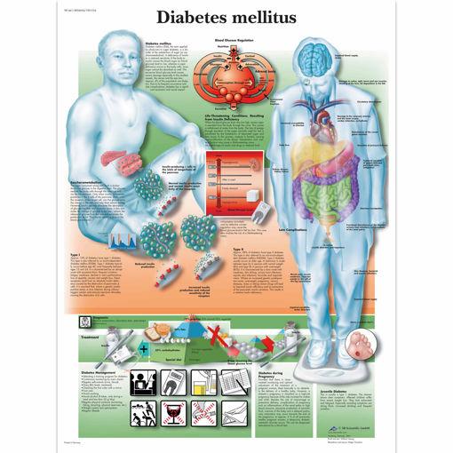 Bild på Diabetes VR1441 1001554