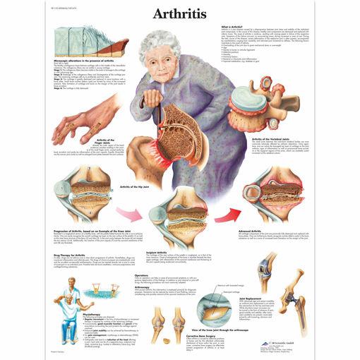Bild på Ledgångsinflammation VR1123 1001474