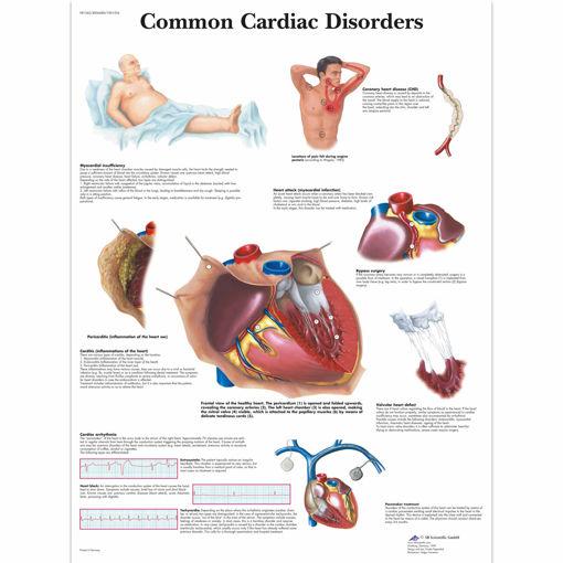 Bild på Vanliga hjärtsjukdommar VR1343 1001526