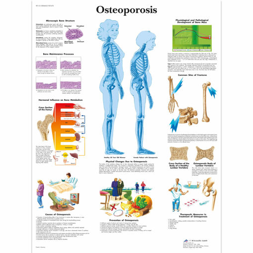 Bild på Osteoporos VR1121 1001472