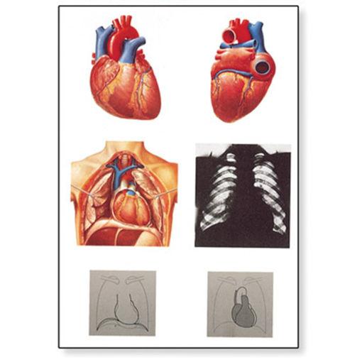 Bild på Hjärta V2053M 1001214