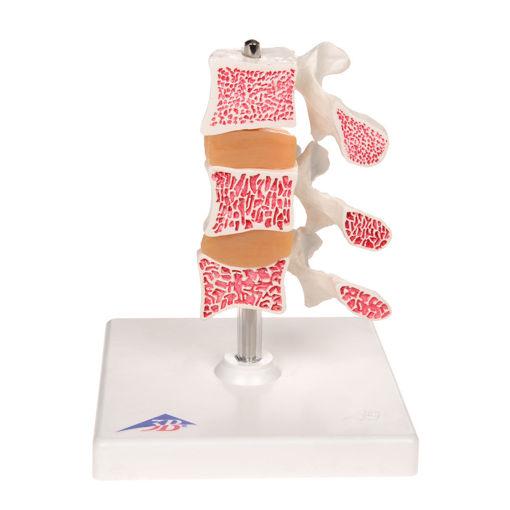 Bild på Ryggkotor med osteoporosis snitt A78 1000153