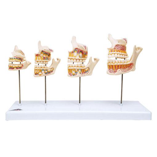 Bild på Tändernas utveckling D20 1000248
