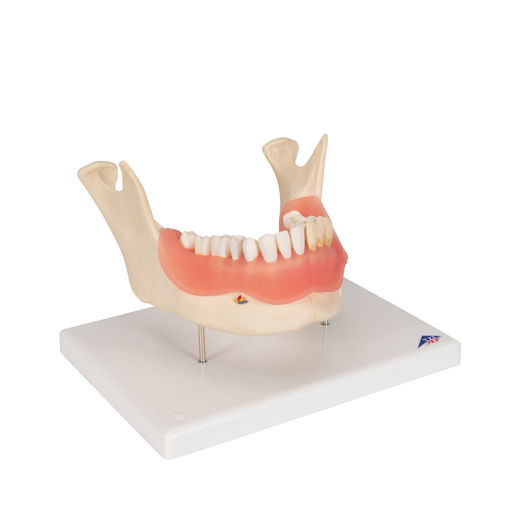 Bild på Tandsjukdommer D26 1000016